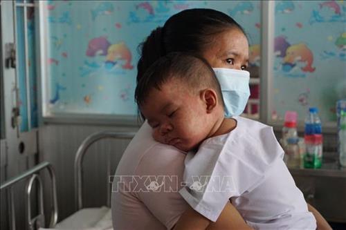 Bệnh nhi mắc bệnh sởi đang điều trị tại Bệnh viện Bệnh Nhiệt đới Thành phố Hồ Chí Minh. Ảnh: Đinh Hằng – TTXVN