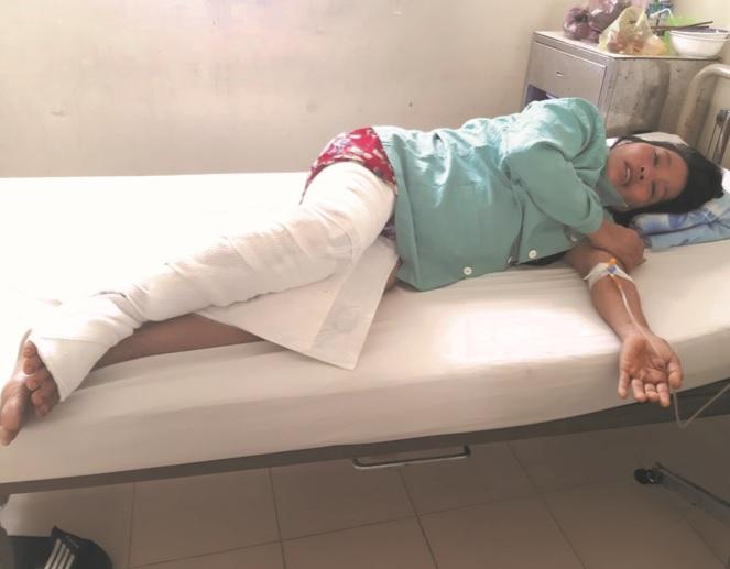 Chị Lê Thị Luận đang được điều trị tại BVĐK Khánh Hòa do chữa bệnh bằng phương pháp cắt lể.
